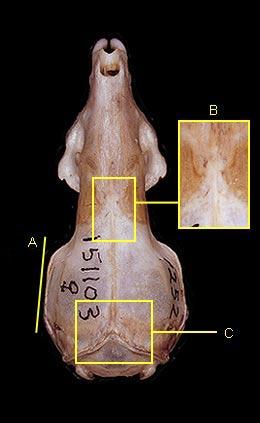 Interparietal Bone